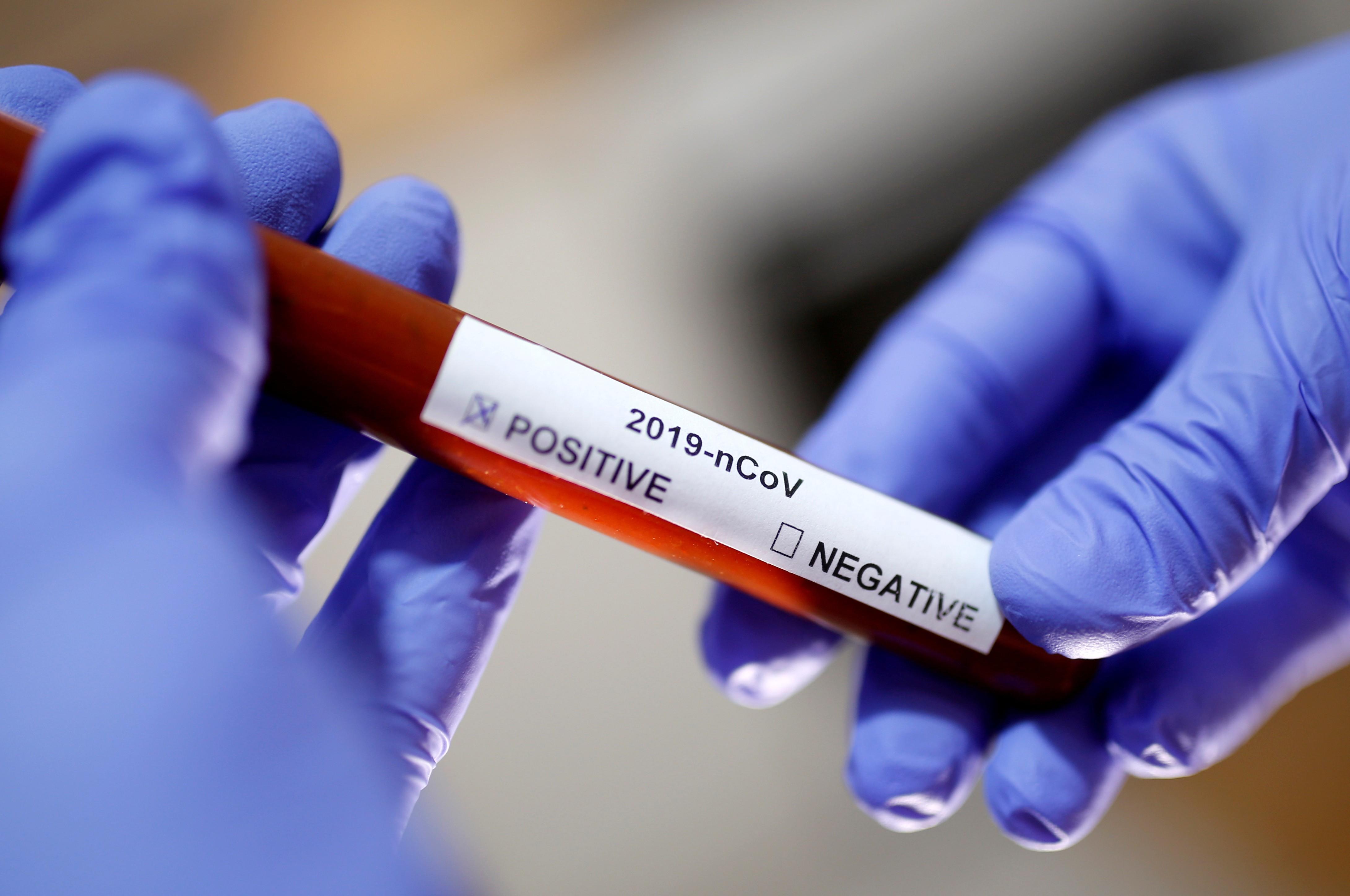 Em menos de 5 meses de 2021, RN já registra mais casos de Covid-19 que em todo 2020